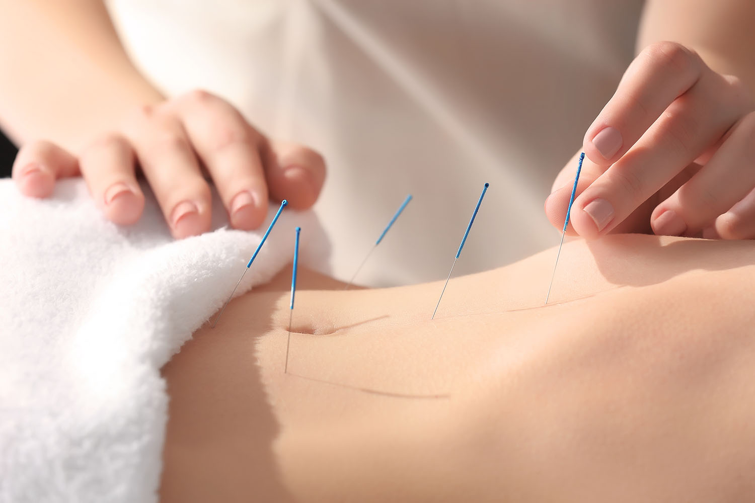 Acupuncture, Hitchin